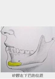 硅胶垫下巴位置