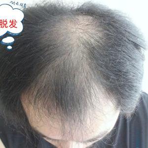 才25岁就5级脱发了一定要做植发手术吗?