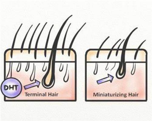 双氢睾酮是如何导致脱发的呢