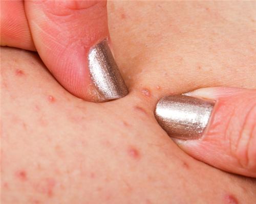 毛囊炎为什么会影响毛发健康