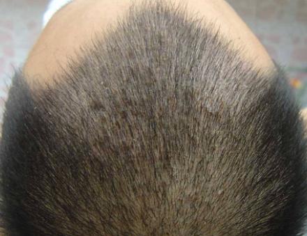 毛发移植后起痘痘是怎么回事儿