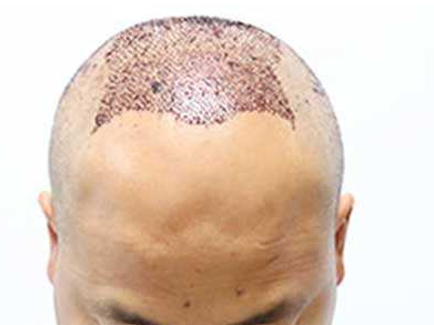 毛发移植术后出现红点是怎么回事儿呢
