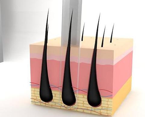 毛发移植后毛囊几天可以稳固