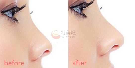硅胶隆鼻的案例