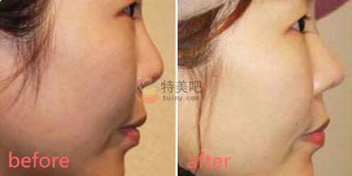 耳软骨复合隆鼻的案例