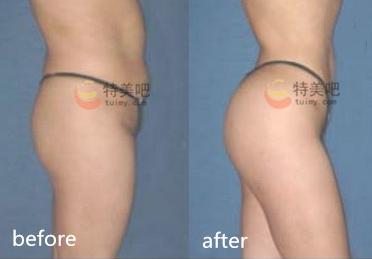 臀部吸脂术前术后对比