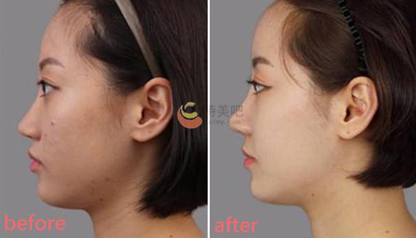 胶原蛋白隆鼻的案例