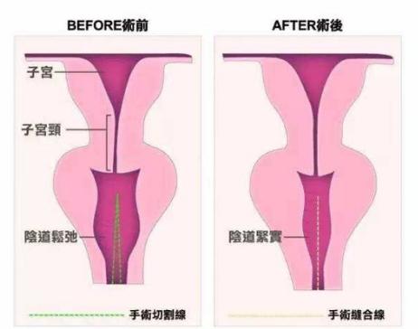 阴道紧缩手术图解
