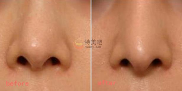 鼻部膨体假体取出案例