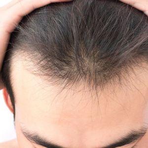 前额头发种植效果好吗?
