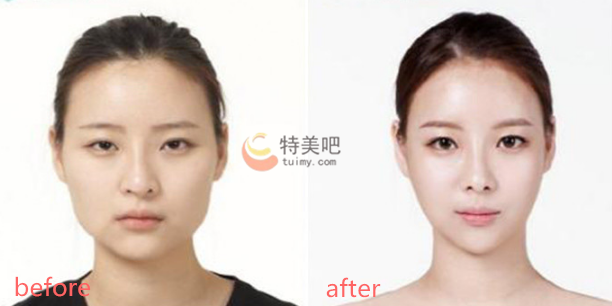 V-LINE瓜子脸手术案例