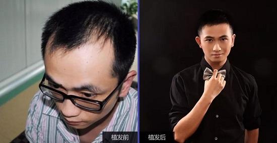 植发后头发还会脱落吗?