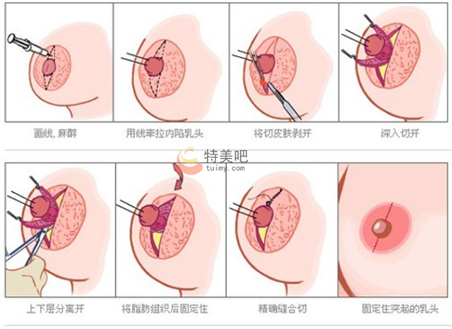 乳头内陷矫正手术过程