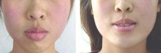 厚唇改薄前后对比图