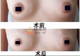 乳晕缩小案例
