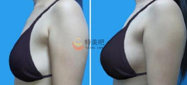 乳房下垂矫正案例