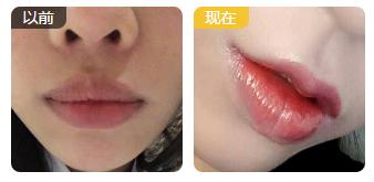 M唇成形术前后对比图