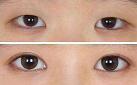 全切双眼皮术前术后对比