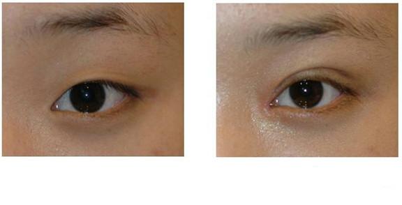 埋线双眼皮术前术后对比图