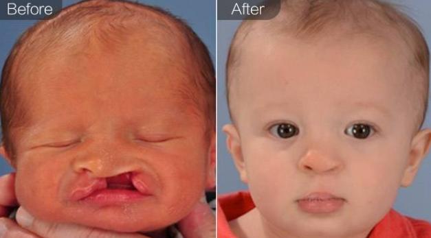 唇腭裂修复前后对比图