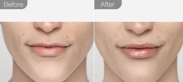 玻尿酸丰唇前后对比图