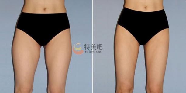 射频溶脂瘦大腿案例