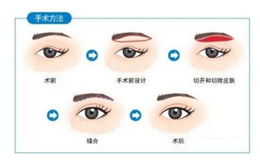 切眉术手术过程