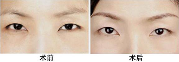 切眉术术前术后
