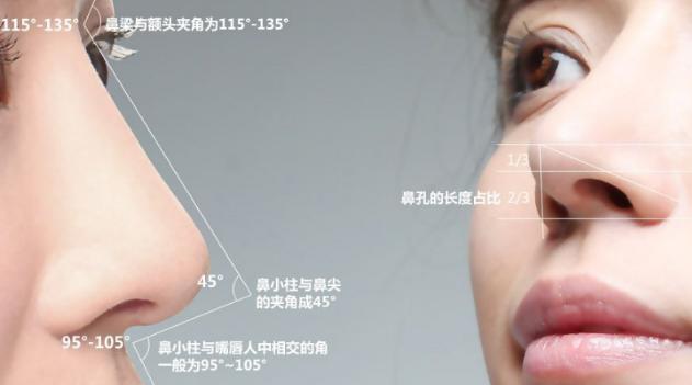 达拉斯隆鼻