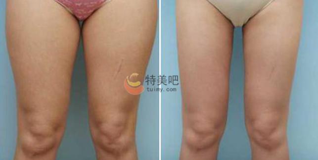 隔空溶脂瘦大腿案例