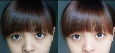 玻尿酸去黑眼圈术前术后