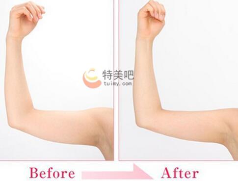 动氧瘦手臂案例