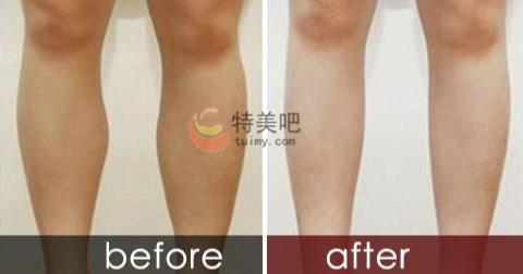 动氧瘦小腿案例