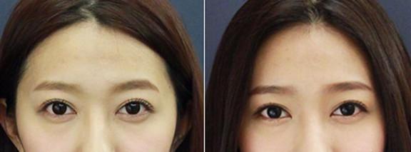 玻尿酸丰眉弓术前术后对比