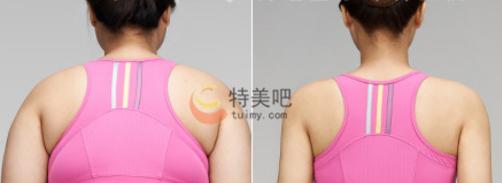 动氧瘦肩膀案例