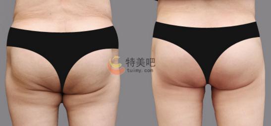 动氧瘦臀部案例