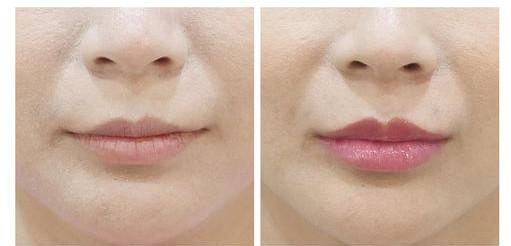 自体脂肪丰唇术前术后