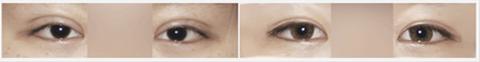 眼部修复术前术后