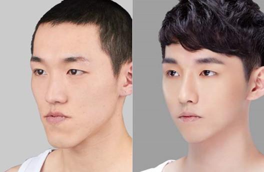 唇部修复术前术后