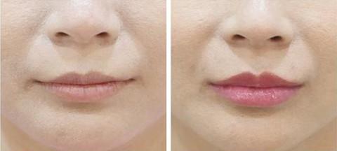 玻尿酸丰唇珠术前术后