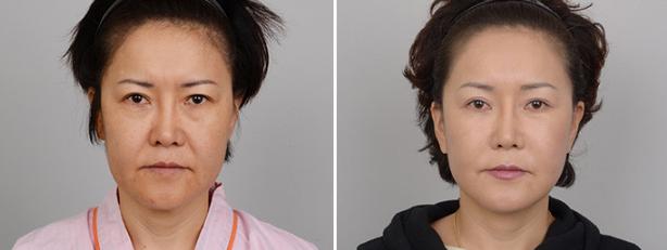面部拉皮手术案例
