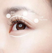 做双眼皮是割的好还是埋线好?