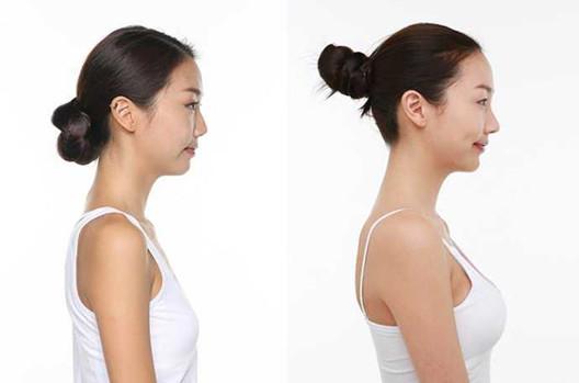 乳房下垂矫正术前术后
