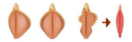 小阴唇手术