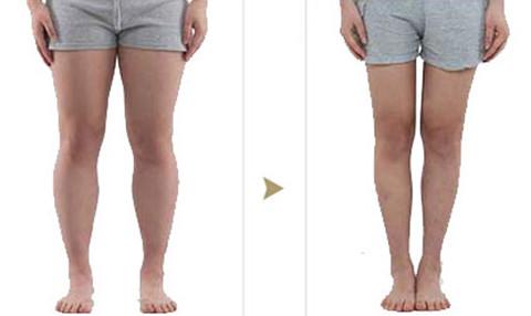 吸脂瘦大腿术前术后