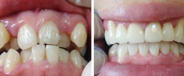舌侧矫正前后对比图
