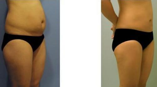 吸脂瘦腹部前后对比图