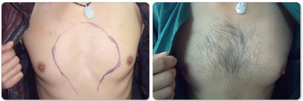 种植胸毛案例