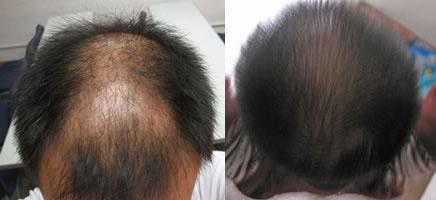 工作压力过大最近老师掉头发需要做植发吗?