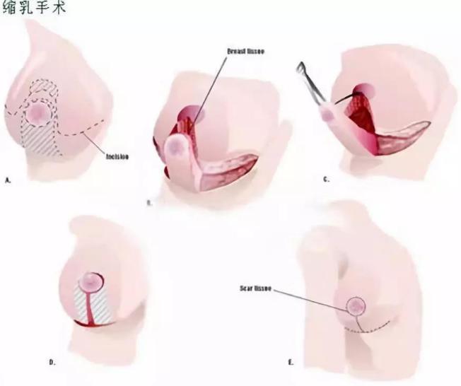 缩胸手术原理
